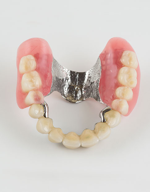 Tooth and Clasp Additions